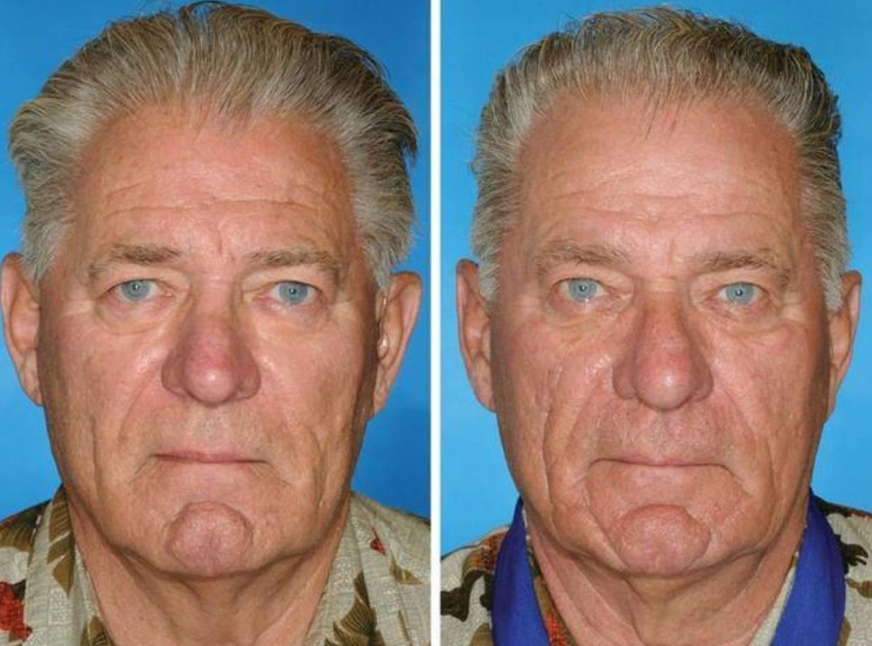 Differenza del depilator dallepilatore
