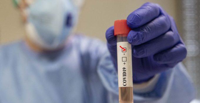 Regione Sicilia avvia screening epidemiologico