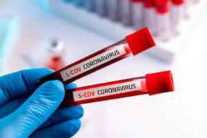 Coronavirus dati Sicilia, scendono a 123 le persone ancora contagiate